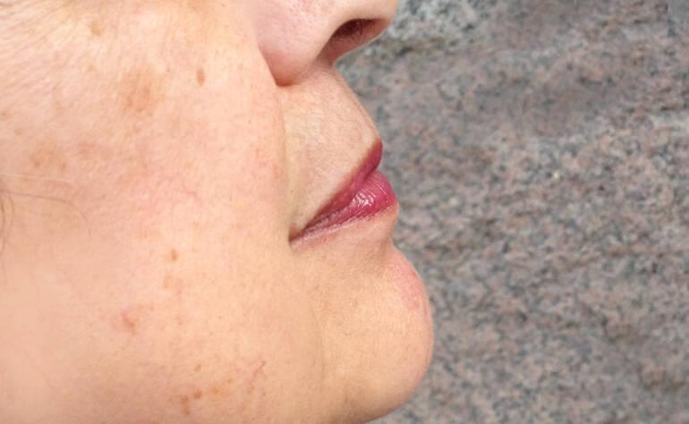 Come  eliminare le macchie del viso con i cosmetici al Latte d'asina