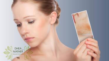 Perchè dovremmo disintossicare e purificare la pelle?